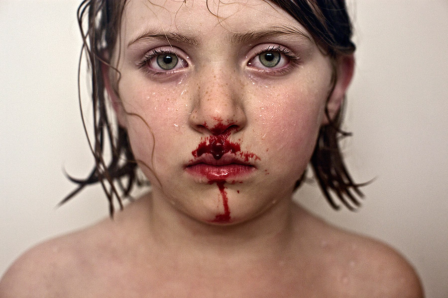 Bloody Nose (2012) from the series Wild and Precious by Jesse Burke