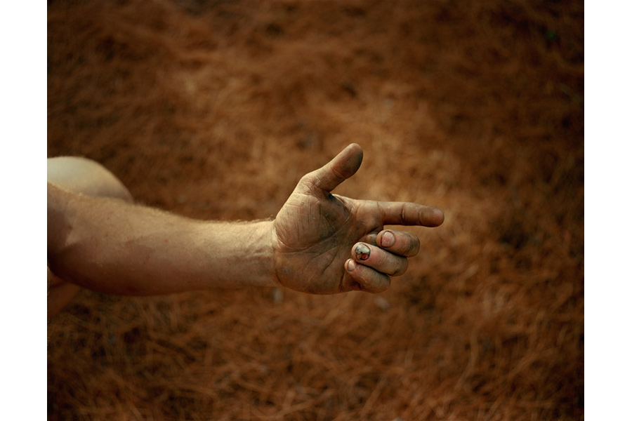 Broken Fingernail (from the series 60 Degrees), 2012 by Forest Kelley